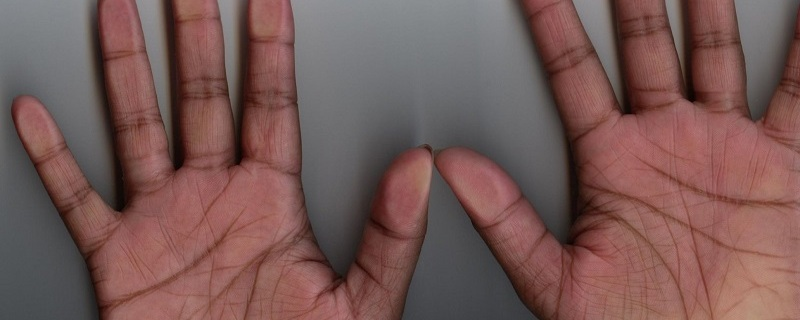 Only 3% People Have Letter X On Their Palms: Do You Have It?